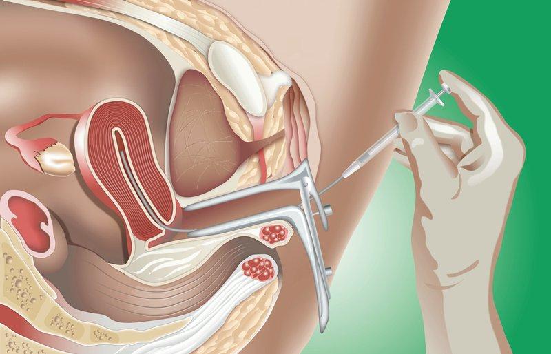 bơm tinh trùng vào tử cung tại nhà có được không