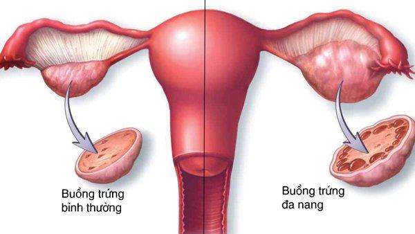 buồng trứng đa nang gây chậm kinh